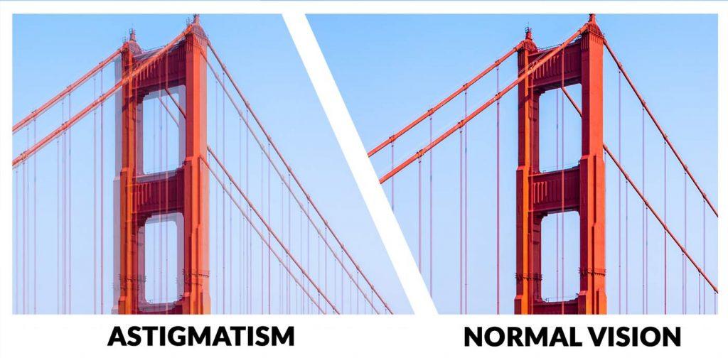astigmatism example